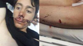 ناگفته های کولبر کرد از قتل پدرش به دست پلیس ترکیه